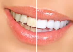 Weiße Zähne durch Bleaching