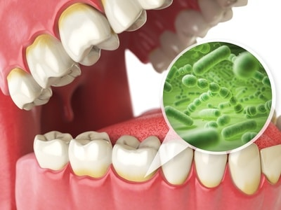 Zahnbelag und Zahnstein durch Bakterien